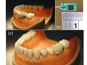 台灣之光!台大研發智慧型假牙,幫助人類監測口腔活動
