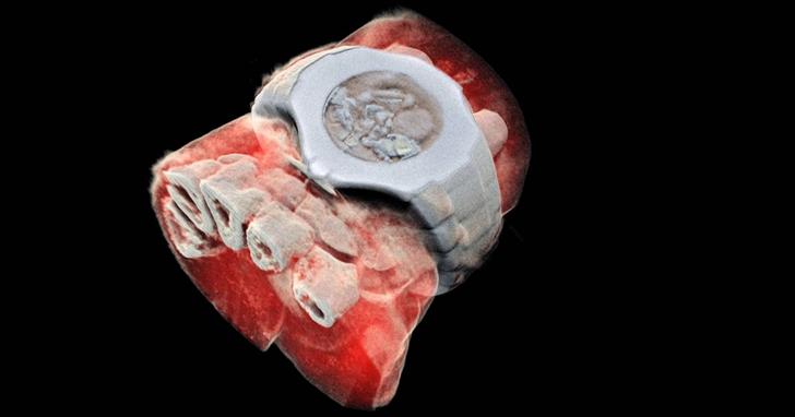 CERN尋找「上帝粒子」的技術,讓人體的第一張3D 彩色X光圖像成為可能