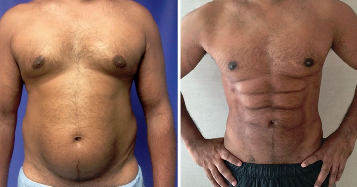 新的整形手術技術讓腹部一塊肌變成六塊肌