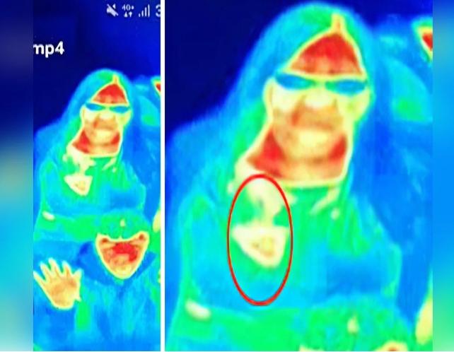 遊客因為博覽會展覽的熱成像鏡�,意外發現自己患有乳癌撿回一命